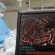 Weltweit erste Anwendung nach Zulassung  Münchnerin (71) erhält von Prof. Dr. Thorsten Lewalter, Chefarzt am Peter Osypka Herzzentrum an den Kliniken Dr. Müller in München, Stents, die  vom Körper vollständig abgebaut werden